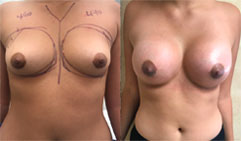 460cc implants used for Breast Augmentation