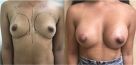 Primary Breast Augmentation Before and After photo set