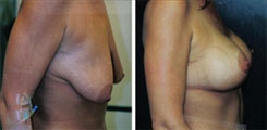Breast Lift Enhancement  before and after