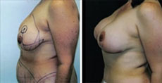 Beverly Hills Breast Lift before and after photos