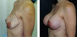 Breast Lift with 350cc implants