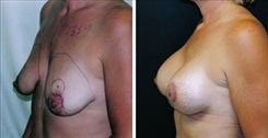 350 cc Breast Implants with Lift before and after