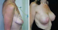 Breast Lift Beverly Hills before and after photos