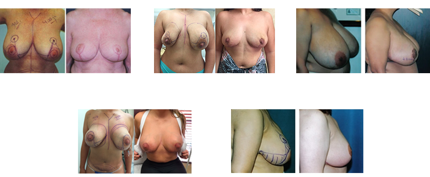 Patients Before and After Photos