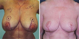 Breast Reduction with lift before and after