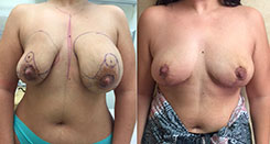 Beverly Hills Breast Reduction surgery before and after photos