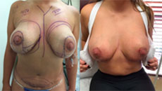 Breast Reduction with 350 cc implants before and after