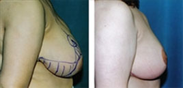 Breast Reduction Beverly Hills before and after photo