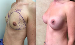 345 cc breast implant, breast revision