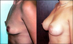 Breast implant revision before and after set