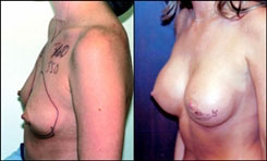 Breast revision 350 cc before and after