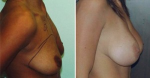 Woman before and after photo of silicone breast augmentation