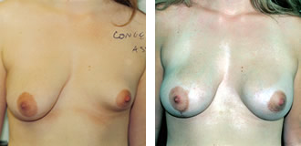 Before: Right 34C Left 34A After: Right Mastopexy Left 390cc