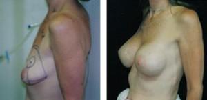 breast_lift50b