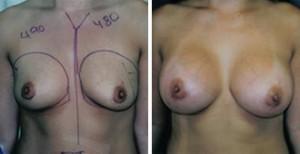 breast_asymmetry18a