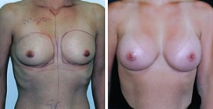 breast_aug0001
