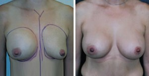 BREAST ASYMMETRY AFTER BREAST AUGMENTATION