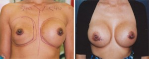 breast_revision98
