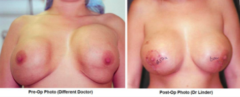 Double Bubble Deformity Before and After Photos
