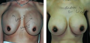 Double Bubble Breast Revision Results