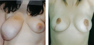 breast_assymetry1