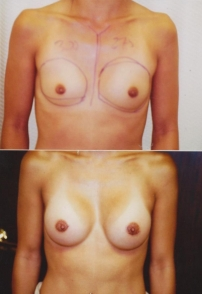 breast-assymetry-front_sm 1