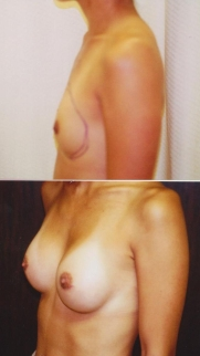 breast-assymetry-side_sm 1