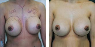 breast_rev30