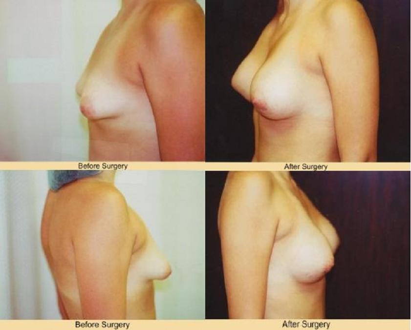 Tubular Breast 2