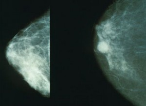 mammogram example
