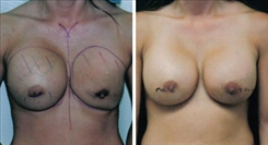 Ruptured Implant Photo  After Breast Revision