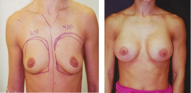 Breast Augmentation Pre-op & Post Pictures