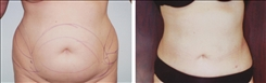 liposuction linder patient before and after