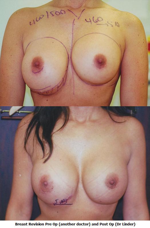 Breast Revision Photos