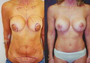 Breast Revision and Tummy Tuck pre-op and post-op photos