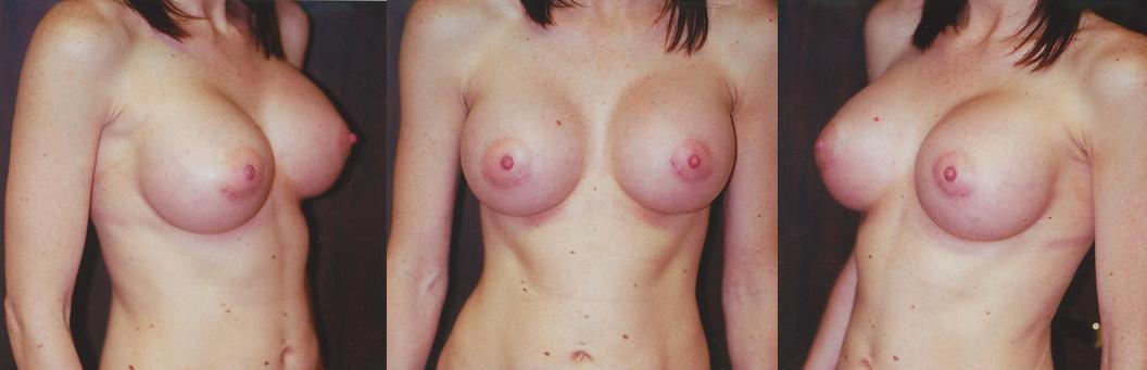 High Profile Implants - Post Op