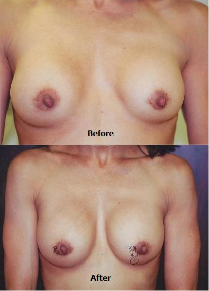 CLEAVAGE REPAIR STATUS POST BREAST AUGMENTATION – BEVERLY HILLS