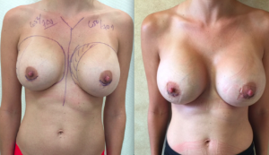 Woman Before and After Second Augmentation