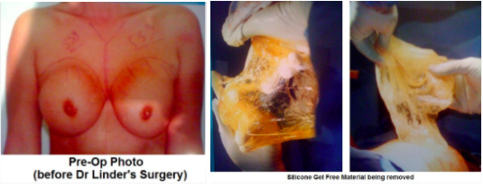 Ruptured Silicone Gel Implant
