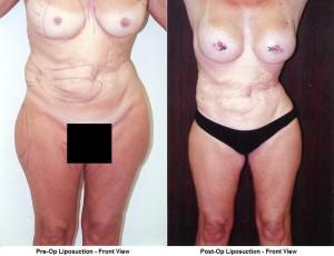 linder liposuction cobalt Covering