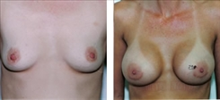 Before and After - Augmentation