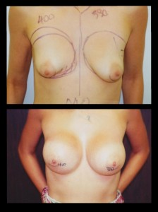 Breast Asymmetry and Tubular Deformity Before and After Photos