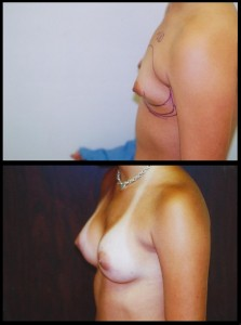 Tubular Breast Deformity Beverly Hills
