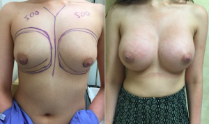 Mild Tubular Breast Deformity Before and After Photos