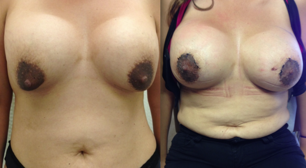 Double Bubble Breast Deformity Before and After Photos