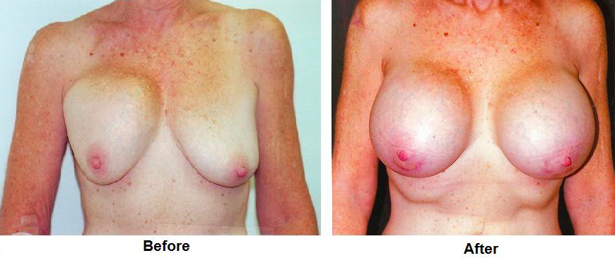 Double Bubble and Capsular Contracture Before and After Photos