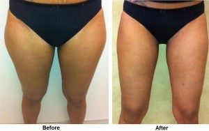 Woman Having Undergone Liposuction in Her Thighs