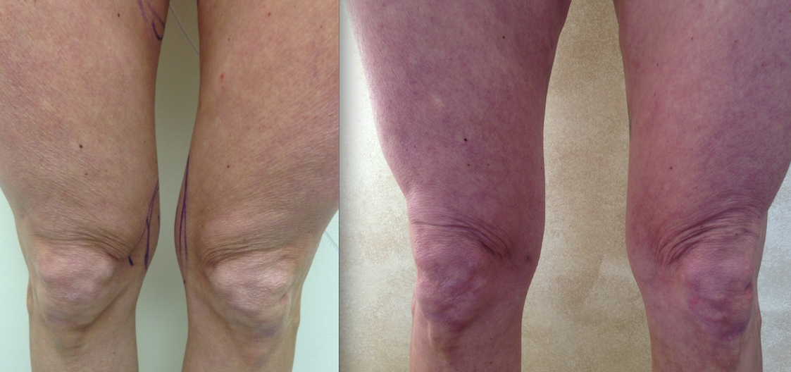 Knob Knee Lipo Before and After Results