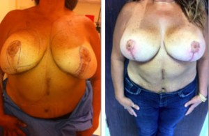 Breast Lift, Breast Augmentation Revision