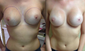 Woman Before And After Breast Revision